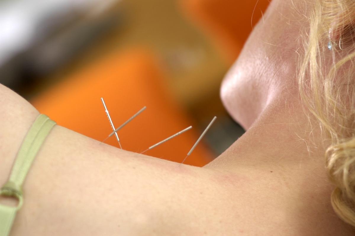 hooikoorts acupunctuur